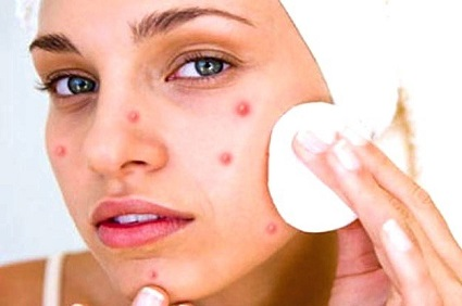 How to get rid of breakouts overnight